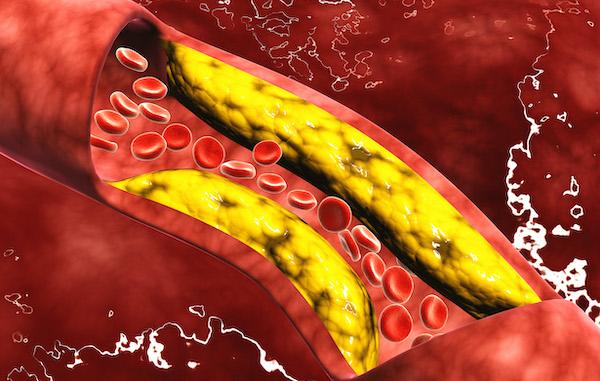 YPM high cholesterol 600.jpg