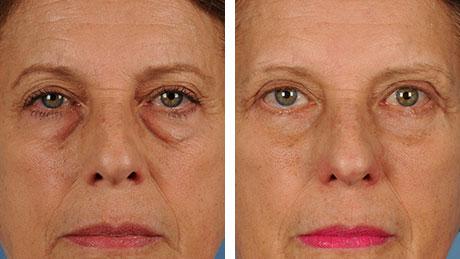 Eyelid Surgery Blepharoplasty 460x259