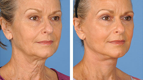 Before & After Photos | Plastic Surgery | UT Southwestern Medical Center