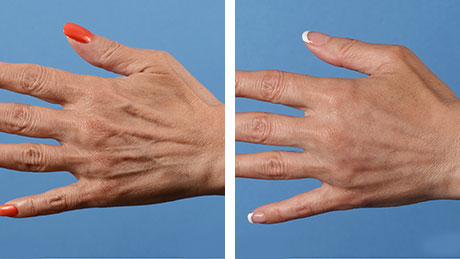 Hand Rejuvenation 460x259