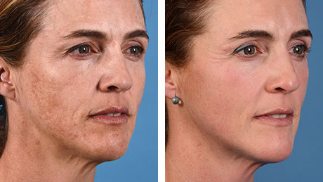 Laser Skin Resurfacing Non-Surgical 460x259