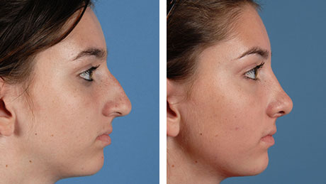 Nose Job Rhinoplasty 460x259