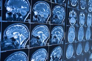 blog_apr_05_2017_brain-scans