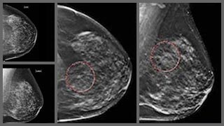 A big step for breast health in Texas: 3-D mammograms now
