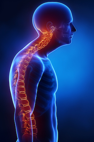blog_spinal-deformities