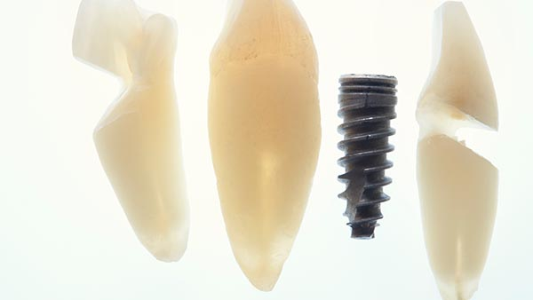Bone Grafts and Dental Implants | Conditions & Treatments