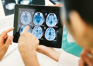 brain scan 320