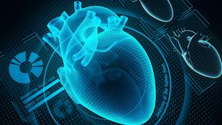 cardiac_amyloidosis_320x180.jpg