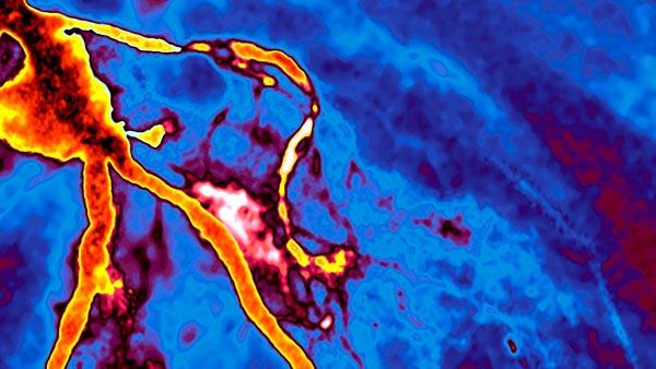 Cardiovascular Imaging