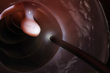 Polyp found during a colonoscopy