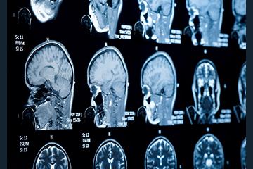 concussion-vets-360x240