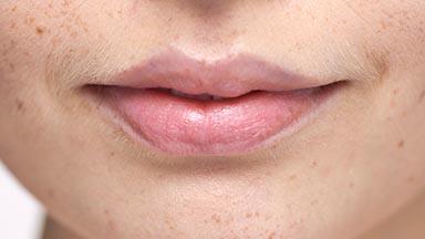 fort-worth-dermatology-352-384x216.jpg