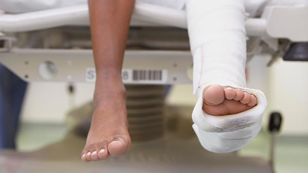 Texas Auto Center >> Fractures of the Upper and Lower Extremities | Condition | UT Southwestern Medical Center