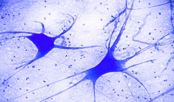 General Neurology