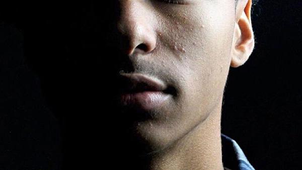 Hearing, Balance, and Facial Disorders