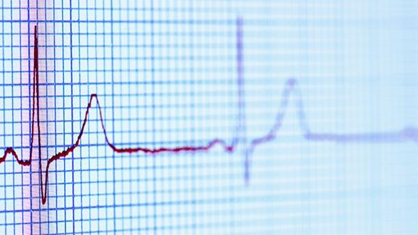 Heart Rhythm Management