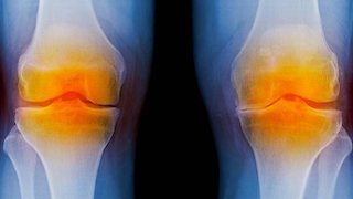 Total Knee Arthroplasty ERAS
