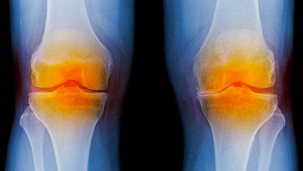 Orthopaedic Knee Care Backed by Experience
