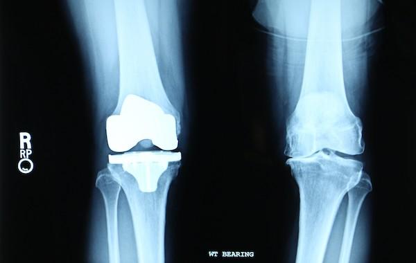 knee replacement 600.jpg