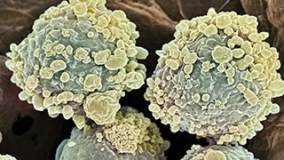 lymphocytic-leukemia-white-blood-cells-320x180.jpg
