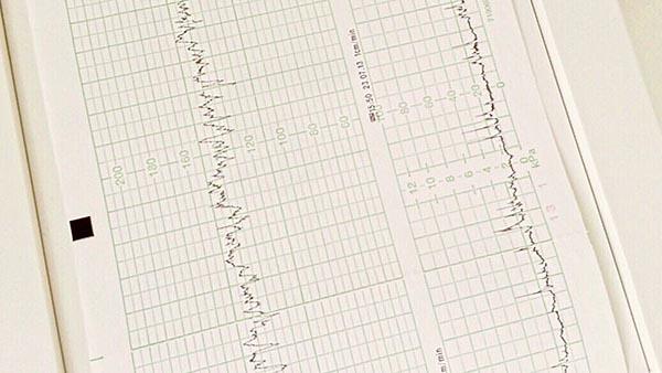 Maze Procedure for Atrial Fibrillation
