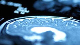 neuroangiography-320x180.jpg