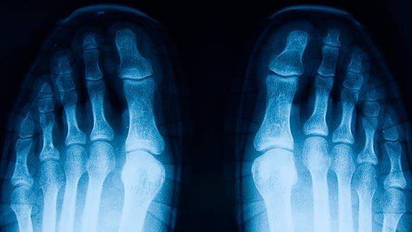 Orthopaedic Surgery