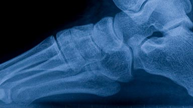 Orthopaedic Surgery Clinic - Foot & Ankle