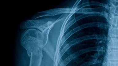 Orthopaedic Surgery Clinic – Shoulder