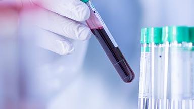 University Hospital Outpatient Laboratory