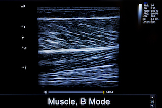 Ultrasound for muscle pain