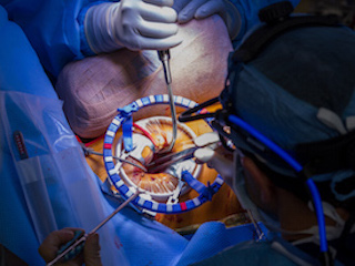 heart valve surgery procedure