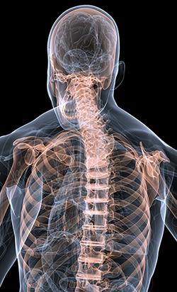 Imaging of spine