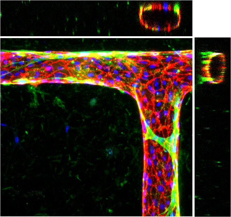 Engineered microvessels can form bends and T-junctions, like this one. The blue dots are the nuclei of the cells in the vessel walls, and the red lines are the cell junctions. Smooth muscle cells (green) wrap and tighten around the vessels, just as they do in the human body.
