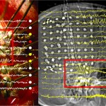 EEG superimposed over images of a brain.