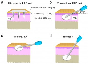 Comparing a microneedle tuberculosis test with one given with a hypodermic needle.