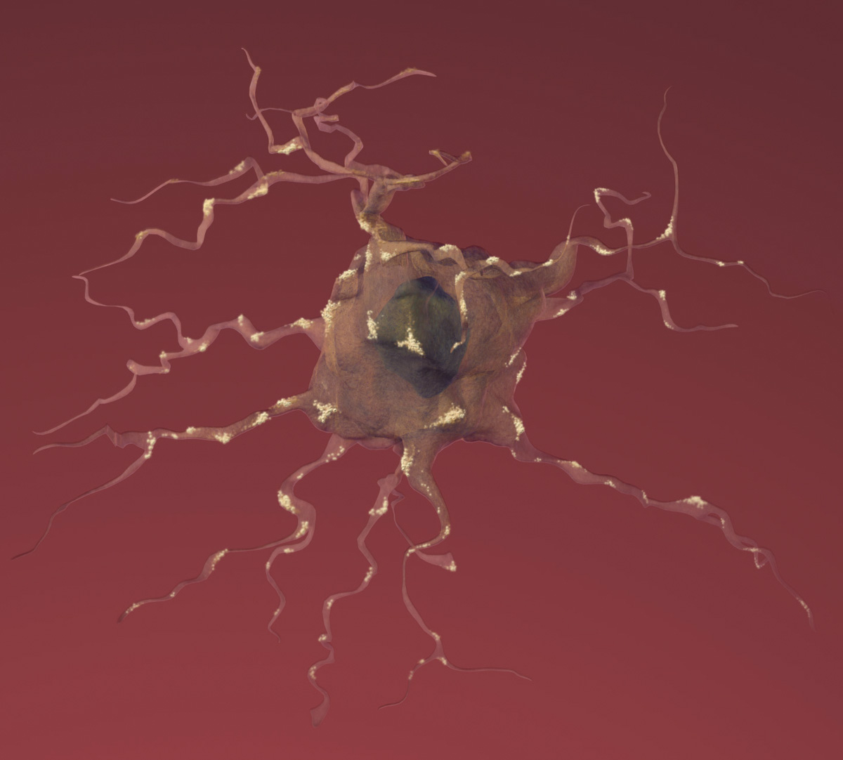 damaged brain cell Alzheimer's