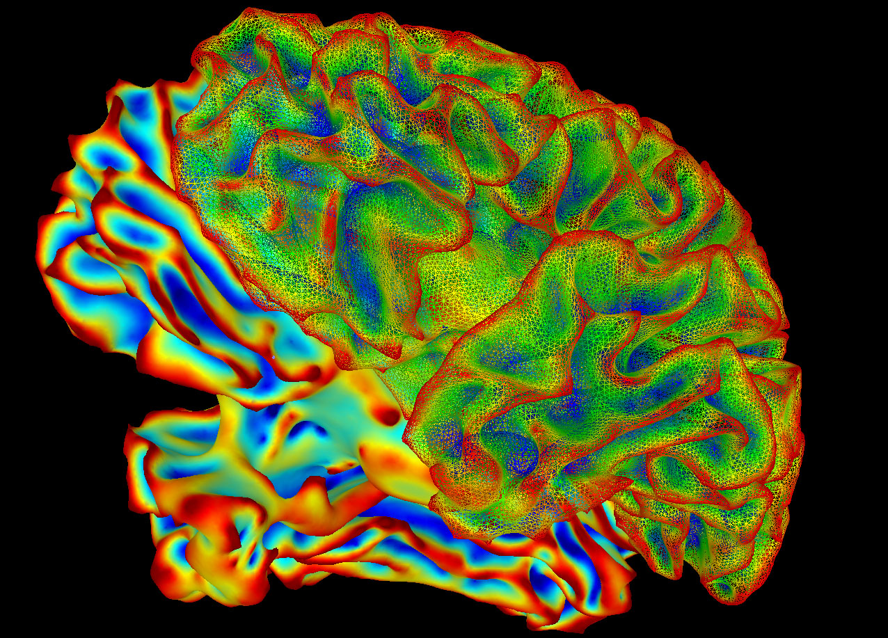 A colorized lateral view of the brain