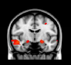 brain scan showing activation of the amygdala in the left hemisphere