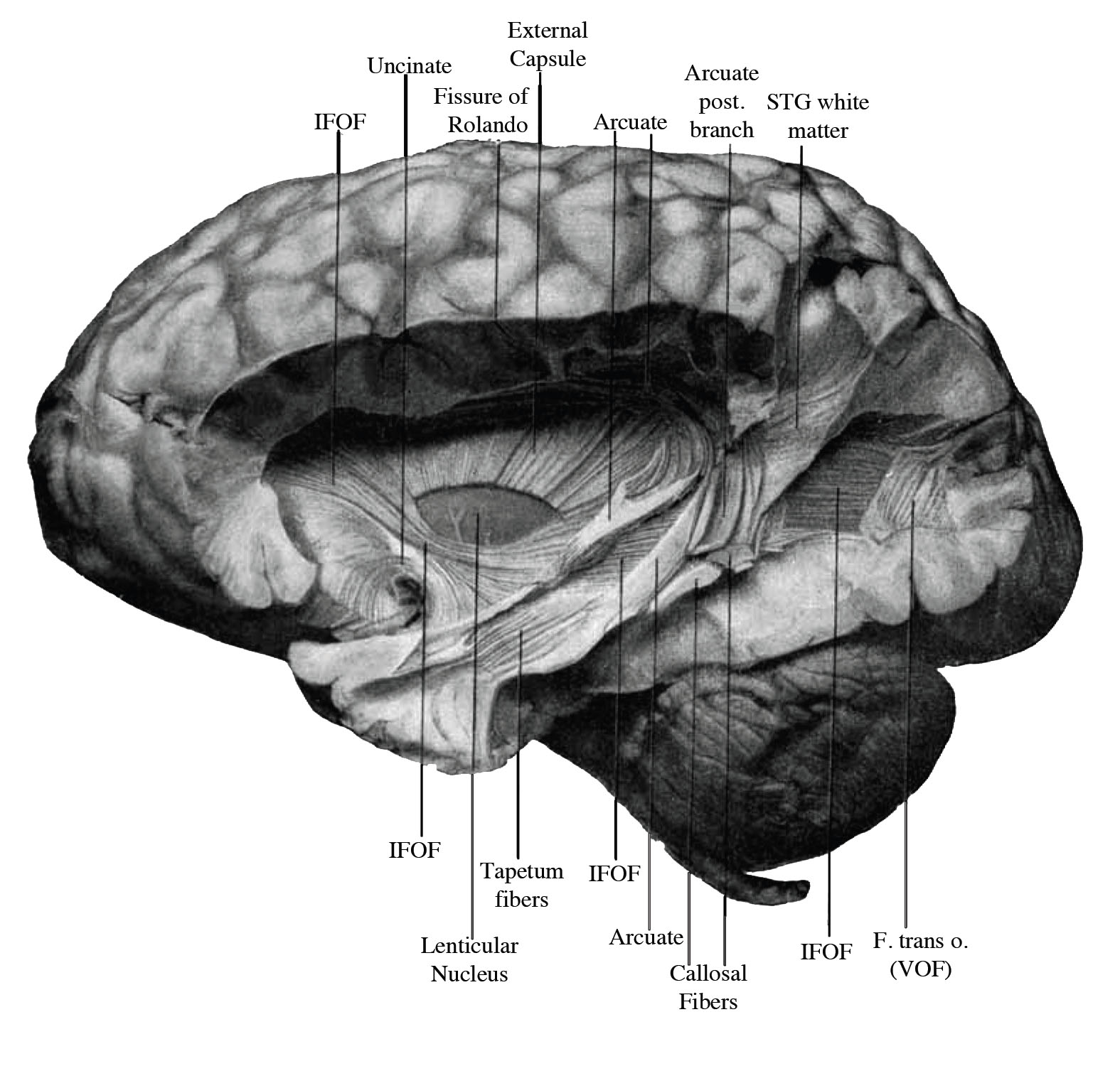 Major Brain Pathway Rediscovered After Century Old Confusion