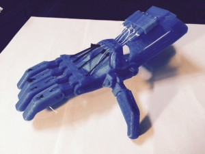 One of the 3-D printed hands