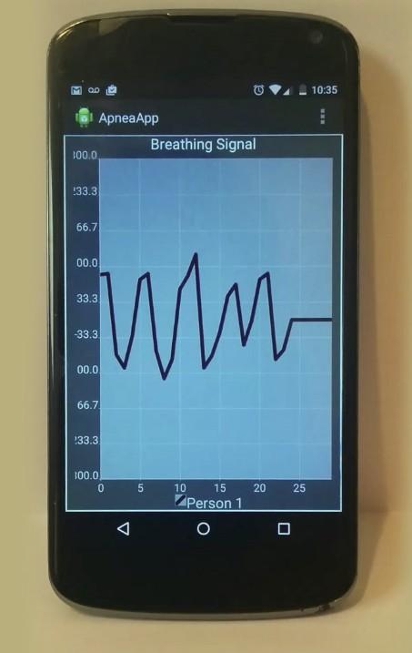 New UW app can detect sleep apnea events via smartphone | UW News