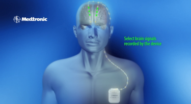 A look at how the deep brain stimulation system works.