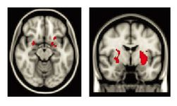Regions of the brain where maltreated children had greater activity than non-maltreated children when looking at negative images.
