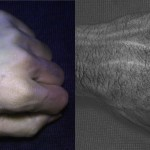 Compared to an image taken with a normal camera (left), HyperCam images (right) reveal detailed vein and skin texture patterns that are unique to each individual.