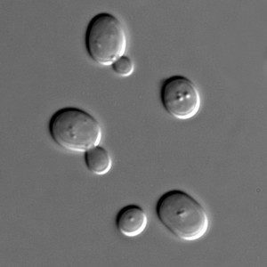 Yeast cells under a microscope.