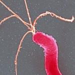 a bacterium
