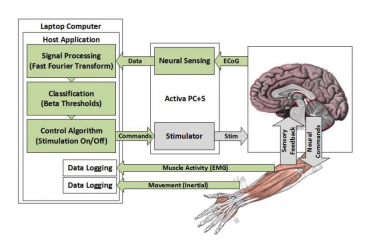 In the UW CSNE team's experimental setup, brain signals in the motor cortex are sensed by the Activa PC+S and processed on a laptop computer. When the system detects movement in an affected limb, deep brain stimulation in the thalamus is activated to control tremor symptoms.