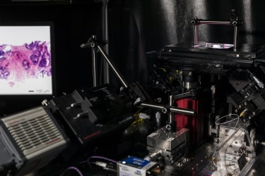 A versatile light-sheet microscope developed at the University of Washington can provide surgeons with real-time pathology data to guide cancer-removal surgeries and can also non-destructively examine tumor biopsies in 3-D.