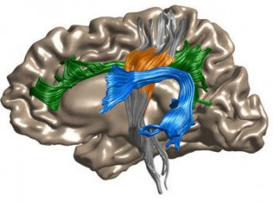 Depiction of the left hemisphere of the human brain